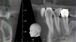 Vereinfachte 3D-Augmentationen mit CAD und modernen Materialien