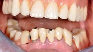 Der parodontale Risikopatient