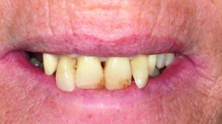 Augmentation mit partikelförmigem Dentin im Oberkiefer