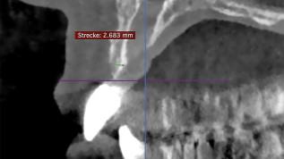Allogene Knochenblöcke bei vertikaler und horizontaler Augmentation
