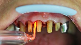 Klinische Behandlungen mit Plasma