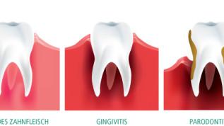 Teamwork als Basis nachhaltig guter Mundhygiene