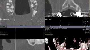 Bone Spreading – erfolgreicher Knochengewinn