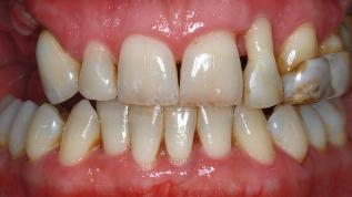 Ästhetische Rehabilitation im parodontal geschädigten Gebiss