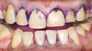 Prävention parodontaler Erkrankungen