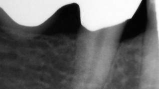 Single-Visit versus multiple Behandlungssitzungen in der Endodontie