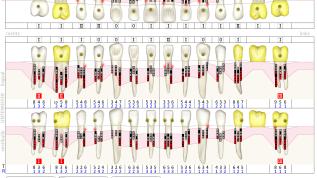 Geschlossene Parodontitistherapie nach dem Kieler Konzept