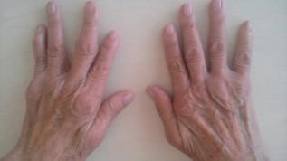 Rheuma – eine Kontraindikation für Implantate?