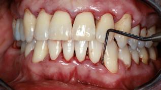 Erfolgreiche Parodontitisbehandlung bei starkem Raucher