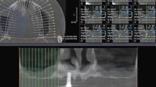 Implantologische Versorgung in Ausnahmefällen