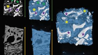 Gesinterte und ungesinterte xenogene KEM im Vergleich