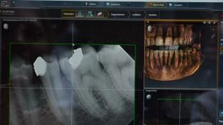 Dentsply Sirona stellt neue Endo-Software vor