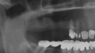 Effektiver Knochenaufbau mit Eigenblut + rh bmp2