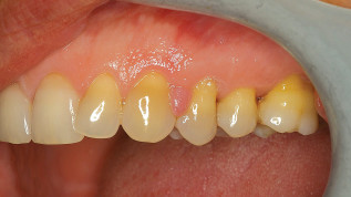 Parodontalästhetik mithilfe von Weichgewebe-Lasern