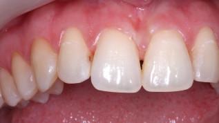 Minimalinvasive Zahnheilkunde mit dem Er,Cr:YSGG-Laser