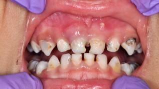 Ein neuer und innovativer Ansatz zur Kronenversorgung pädiatrischer Zähne