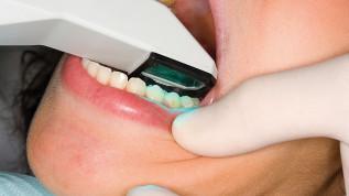 Die komplett digitale Zahnspange ist heute keine Utopie mehr