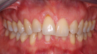 Kieferorthopädisch-parodontologische Kombinationstherapie