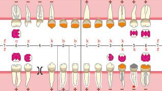 Parodontitistherapie mit chirurgischer Kronenverlängerung