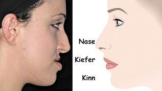 Kieferorthopädische Therapie: Die ästhetische Achse