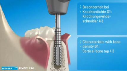 REVOIS® - Das komfortable Implantatsystem