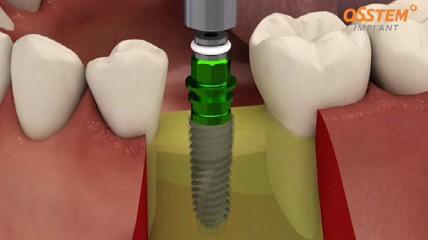 Modernes Design und Primärstabilität: TS III Implantat
