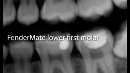 Directa AB - FenderMate lower first molar