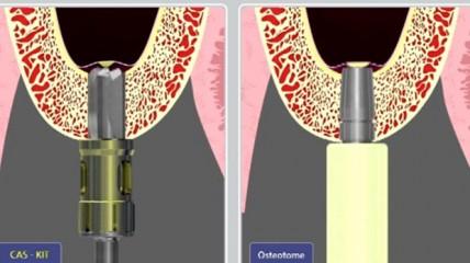 Animation OSSTEM CAS-KIT vs Osteotom