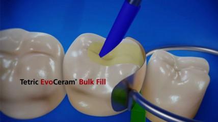 Tetric EvoCeram Bulk Fill & bluephase style