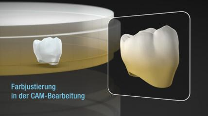 Kuraray: Zirconia ML Master (Deutsch)
