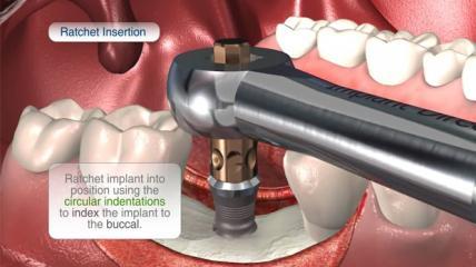 Implant Direct: Das selbstschneidende SwishPlus™ Implantat