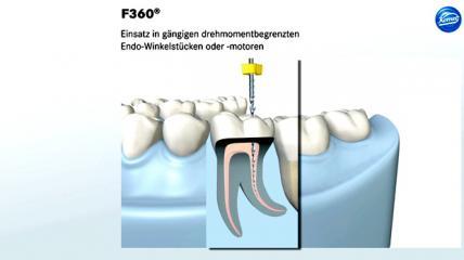 F360 – Einfach und sicher
