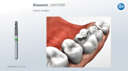 Komet: Präparationsregeln für Keramik-Inlays & -Teilkronen