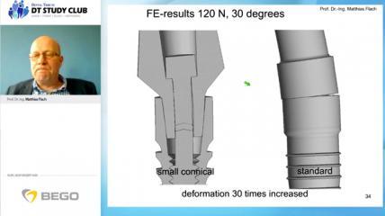 Webinar des Monats: Aspekte der Biomechanik in der Implantologie