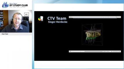 Webinar: Interdisziplinäre 3-D Implantatplanung im offenen Workflow