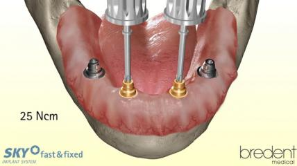SKY fast & fixed Implantat-System