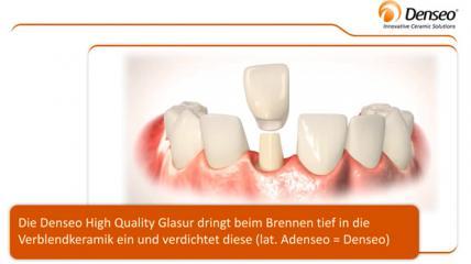 Denseo HiQ Glasur für den optimalen Schutz der Keramik-Krone