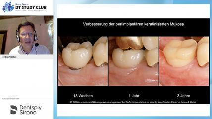 Hart- & Weichgewebsmanagement bei Sofortimplantation im schräg atrophierten Kiefer