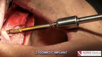 Insertion eines Zygoma-Implantates von Noris Medical