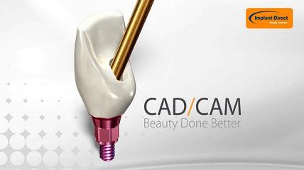 SMARTbase CAD/CAM Abutments von Implant Direct für ein natürliches Aussehen