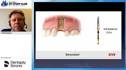 Smart, modern und digital: Die implantologische Sofortversorgung mit Xive