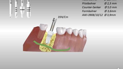 AWI Implants – Die metallfreien Implantate aus Hochleistungskeramik