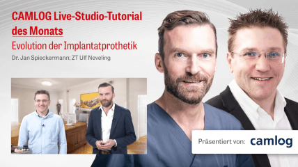 "CAMLOG LIVE-Tutorial ""Evolution der Implantatprothetik"" (Teil 1)"