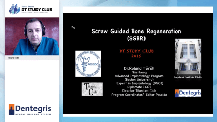 Dentegris Webinar zu Screw Guided Bone Regeneration