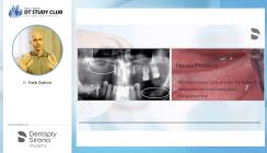 Dentsply Sirona Implants Webinar: Entscheidungsfindung: Eigenknochen oder Knochenersatz?