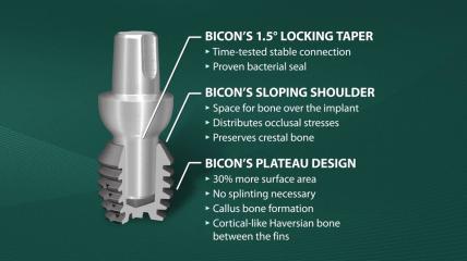 Einführung in die Bicon SHORT® Implants