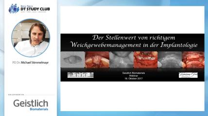 Geistlich Webinar: Weichgewebemanagement in der Implantologie