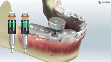 Implantatplanung mit MegaGen R2 Gate – Step-by-step
