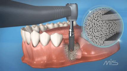 MIS C1 Implantat für eine sofortige Primärstabilität