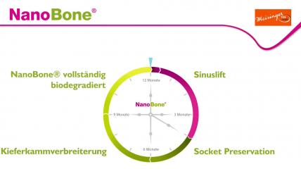 NanoBone® – Knochenaufbau in neuer Dimension